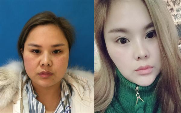 天津中怡做面部吸脂术后效果分享