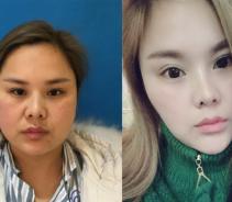 天津中怡做面部吸脂术后效果分享...