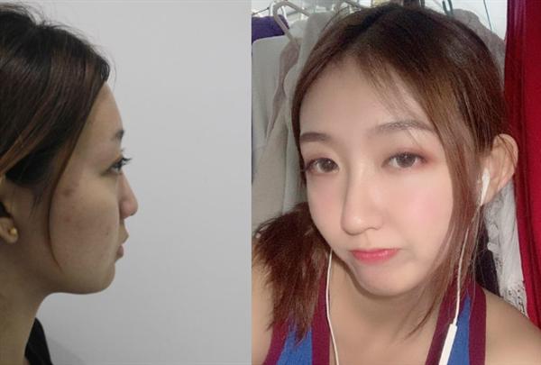 无锡瑞秋做鼻综合术后效果分享