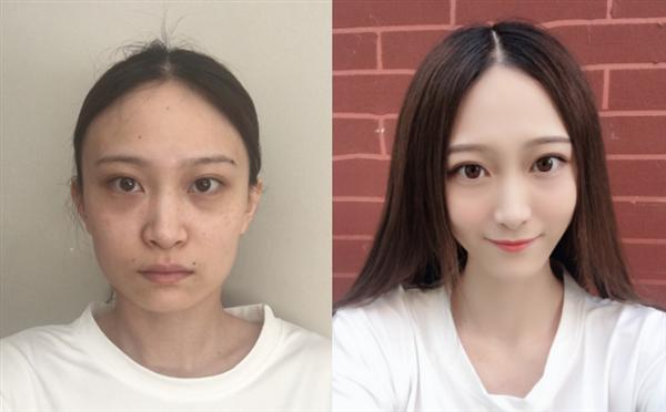 南京康丽做下颌角切除术后效果分享