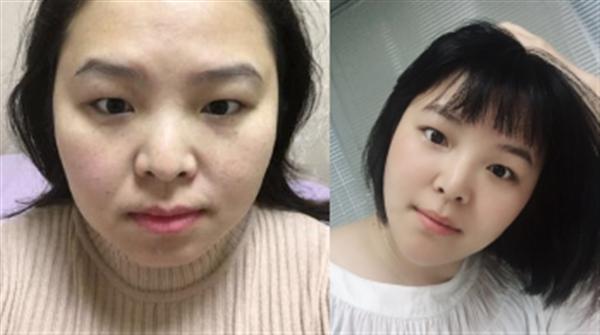 金华亚美做面部吸脂术后效果分享