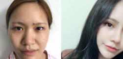 深圳弘美做眼综合术后效果分享