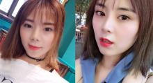 广东秀妍做鼻综合术后效果分享...