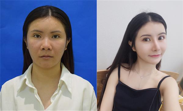 上海保加做鼻综合术后效果分享