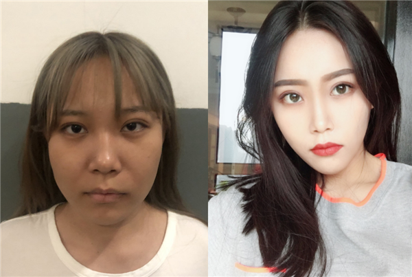 杭州静港做面部吸脂术后效果分享