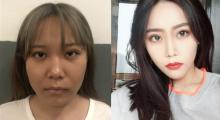 杭州静港做面部吸脂术后效果分享...