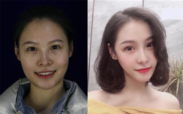 上海美申做下颌角切除术后效果分享