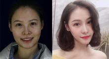上海美申做下颌角切除术后效果分享...