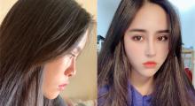 深圳呈悦做自体肋软骨隆鼻术后效果分享...