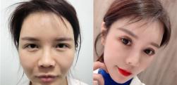 上海id做切眉术后效果分享