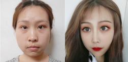 苏州美贝尔打瘦脸针术后效果分享
