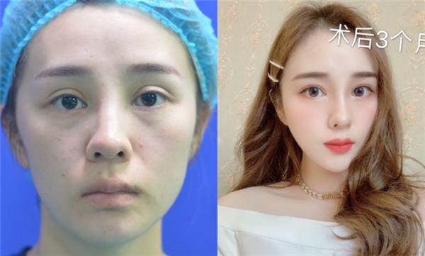上海真爱做双眼皮失败修复术后效果分享