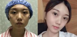 上海长征做颧骨降低术后效果分享