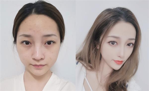 深圳华美做自体肋软骨隆鼻术后效果分享