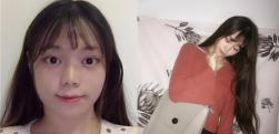 南京联合丽格做面部吸脂术后效果分享