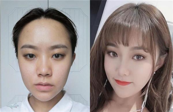 南京艺星做切开双眼皮术后效果分享