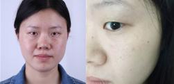 深圳禾丽做激光祛雀斑术后效果分享