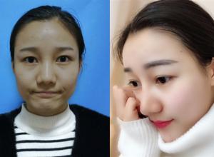 长春中妍做硅胶隆鼻术后效果分享