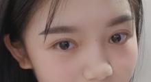 全切双眼皮+开眼角术后效果分享,效果怎么样...