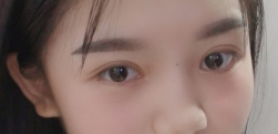 全切双眼皮+开眼角术后效果分享,效果怎么样