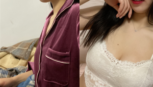 【上海明桥整形】医生的手法很好,胸部明显大了两个罩杯,而且现在也没什么感觉了,取脂的地方还包着纱布,...