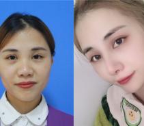 遗传到父母的塌鼻子怎么办?做个鼻综合就可以改变...