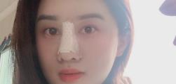 隆鼻修复+耳软骨隆鼻效果分享