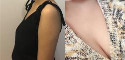 胸小不用害羞,郑州美眼医疗做个假体隆胸就能提高勇气啦