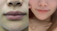 厚唇姐妹团也想要好看薄唇~做个厚唇改薄就能一起美啦...