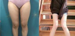 做完这个大腿吸脂你就能拥有一双纤细大长腿,术后效果前后对比图分享