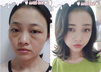 做个自体脂肪面部填充就可以解决毛孔粗大脸部塌陷问题,术后案例效果分享