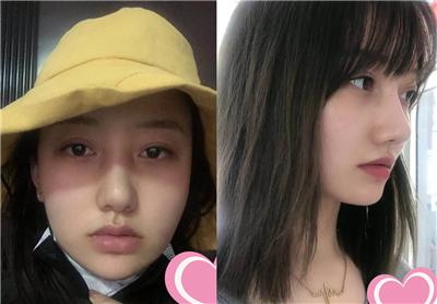 大脸女孩伤不起,做个面部吸脂就可以,术后效果对比图