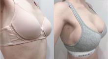胸太小让我自卑,做了个假体隆胸让我重新自信,案例分享...