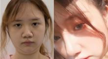 鼻子塌扁不精致,做个鼻子来提升,我的术后效果对比图...