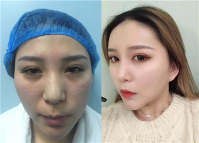 脸部凹陷干瘪,就用自己的脂肪填充起来,术后效果对比图