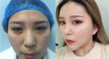 脸部凹陷干瘪,就用自己的脂肪填充起来,术后效果对比图...