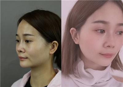 下颌角又方又大,找个靠谱医院做个手术就好了,术后案例对比图