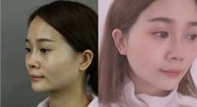 下颌角又方又大,找个靠谱医院做个手术就好了,术后案例对比图...