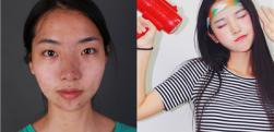 不会化妆不会修饰鼻子,那就做个鼻综合吧,术后案例对比图