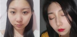 鼻子p图都不好看,那就做一个自体肋软骨隆鼻改善,术后效果对比