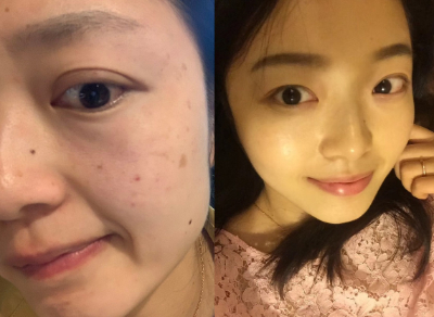 皮肤晒斑影响形象,做一个皮秒激光就还你白皙肌肤,术后案例分享