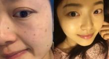 皮肤晒斑影响形象,做一个皮秒激光就还你白皙肌肤,术后案例分享...