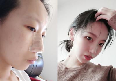 隆鼻恢复好之后完全看不出痕迹,隆鼻案例分享对比图片