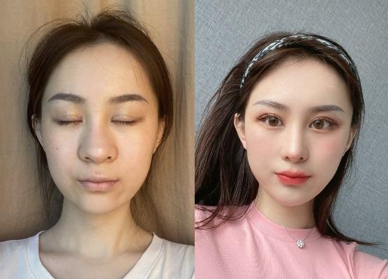 鼻子太丑很嫌弃,做个鼻综合就能改善,术后案例对比图片