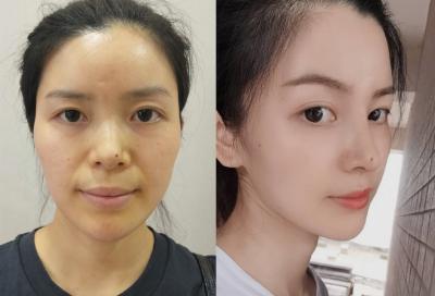 鼻子又宽又塌不立体,做个肋软骨隆鼻来帮你,术后对比图片