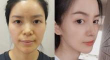 鼻子又宽又塌不立体,做个肋软骨隆鼻来帮你,术后对比图片...