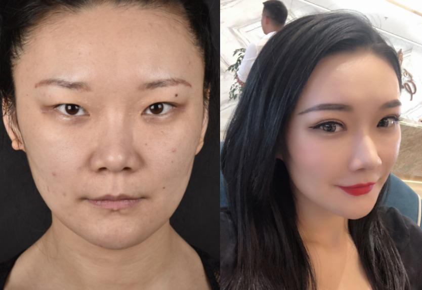 标准单眼皮也想变双眼皮,去宁波尚美美容医院医院做个手术就给你