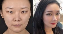 标准单眼皮也想变双眼皮,去宁波尚美美容医院医院做个手术就给你...