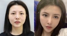 脸部干瘪特别显老,在上海真爱医院做个自体脂肪全脸填充...