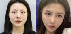 脸部干瘪特别显老,在上海真爱医院做个自体脂肪全脸填充